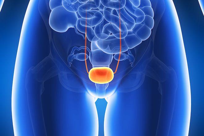 膀胱炎の患部
