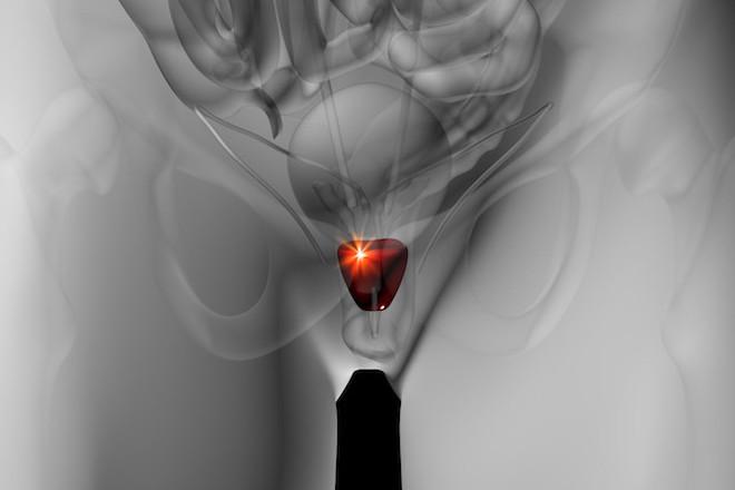 前立腺炎の患部