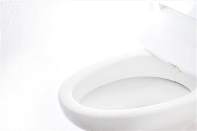 女便器性病