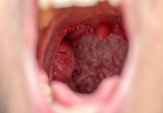 喉の性病の症状